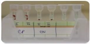 Controle positivo e negativo em Gel Teste